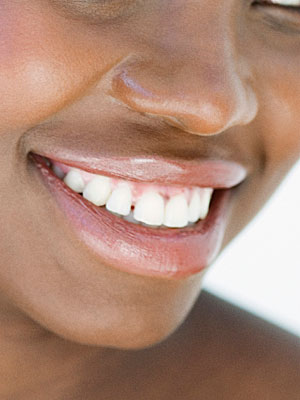 teeth whitening procedures and treatments